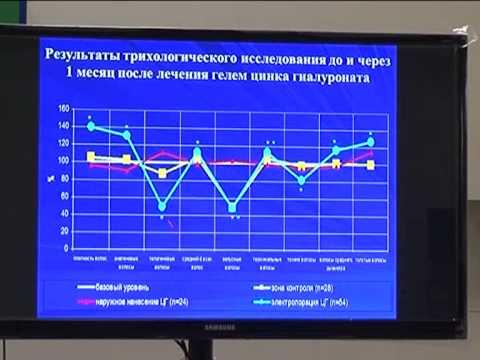 Опыт применения в лечении андрогенетической алопеции электропорации гиалуроната цинка