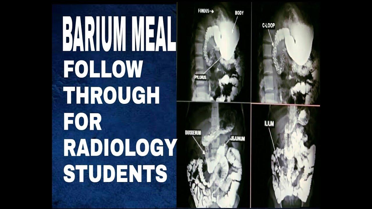 Barium Meal Follow Through Techniques For X Ray Technician Anatomy
