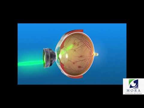 Diabetes Ocular- Como Tratar?