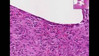 Histopathology Elbow--Chronic fibrinous bursitis