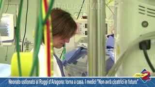 Neonato ustionato al Ruggi d'Aragona torna a casa  I medici Non avrà cicatrici in futuro