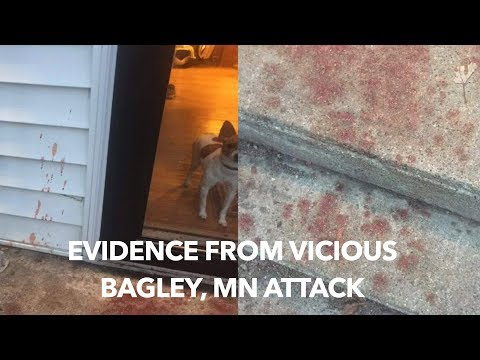 UPDATE: Search Continues For Suspect In Vicious Attack On Bagley Mother & Daughter