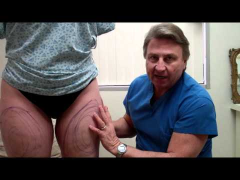 Dr. Thomas Barnes' Thigh Lipo  (Part )I  Liposuction Newport