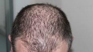 How to treat Baldness or Regrow Hair on Bald Spot   Home Remedy | bald hair treatment at home