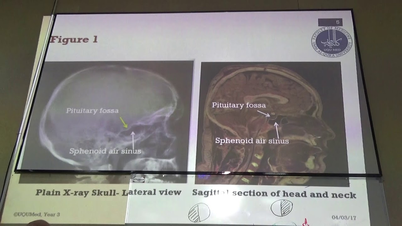 Module B - Year 3 - Functional anatomy of pituitary gland (Male ...