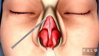Burun Estetiği Ameliyatı İzle   Burun Estetiği Ameliyatı Video