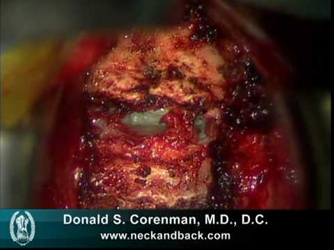 Anterior Cervical Decompression and Fusion (ACDF) | Live Spine Surgery Video | Spine Surgeon