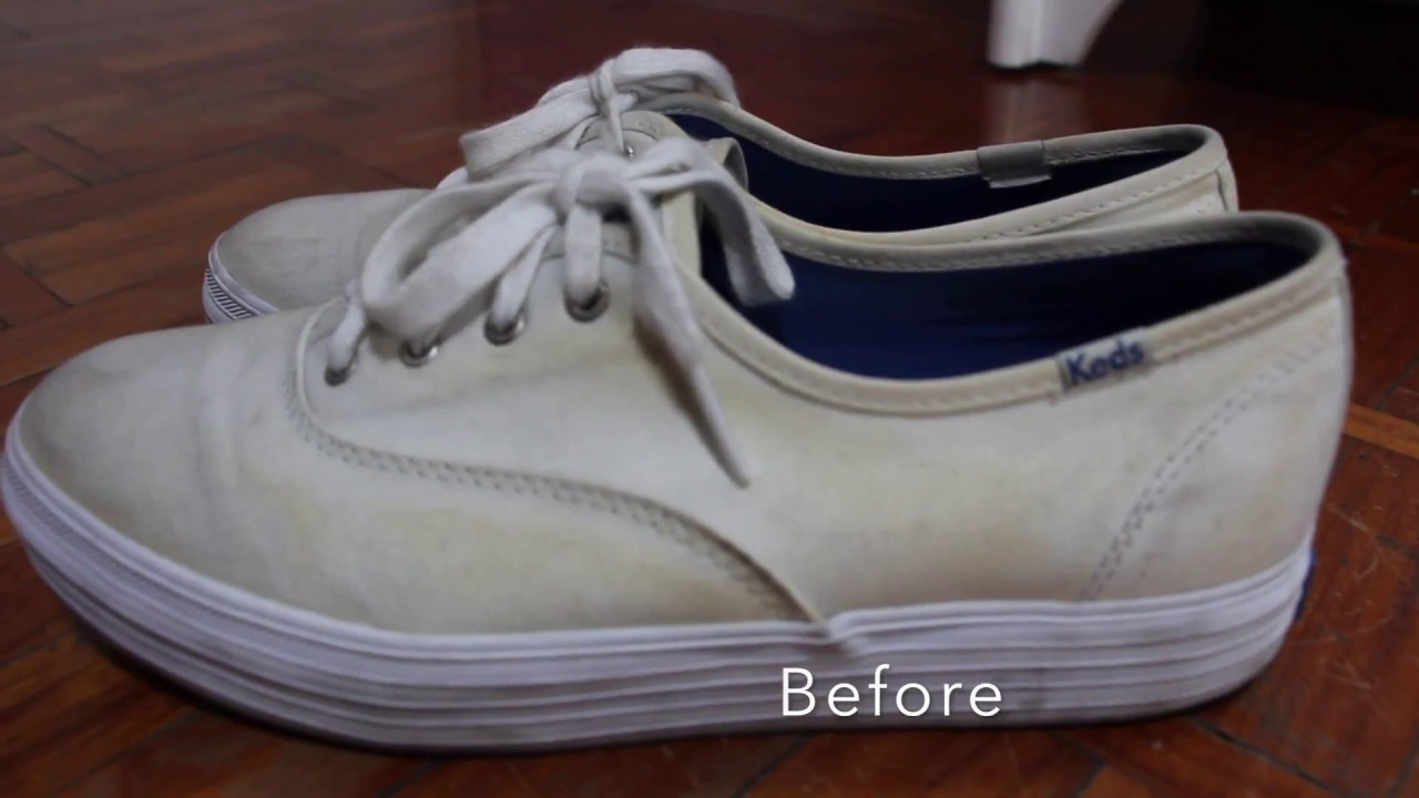Removing Yellow Stains on White Shoes