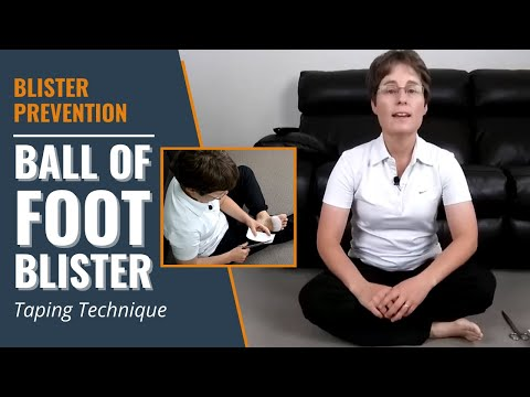 Ball Of Foot Blister Taping Technique | Blister Prevention