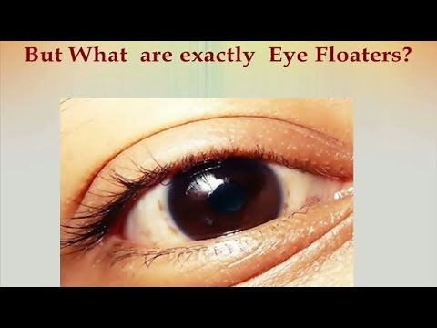 Eye Floaters Cure Ways And How To Get Rid Of In Just A Few Weeks You