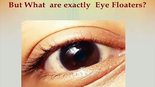 Eye Floaters Cure - Ways and How To Get Rid Of Eye Floaters, In Just A Few Weeks!