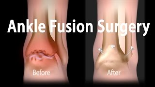 Ankle Fusion Surgery Animation Video