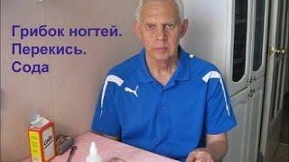 Грибок ногтей Перекись водорода Сода Alexander Zakurdaev
