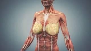 видео Упругая грудь - косметологические методы сохранения упругой груди