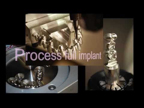Dental CAD/CAM machining features - WorkNC Dental
