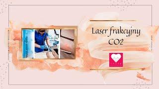 Laser Frakcyjny CO2- Centrum Uroda Dr Monika Lelonkiewicz