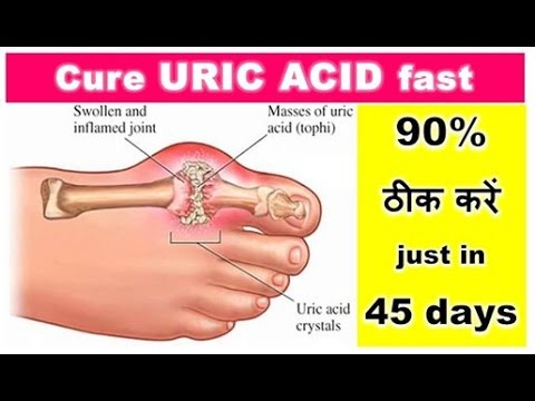 penatalaksanaan gouty arthritis how to naturally lower uric acid in body can water pills help gout