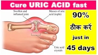 URIC ACID: 90% ठीक करें just in 45 days |  Cure URIC ACID fast, Relieve your Body Pain, Dr Shalini