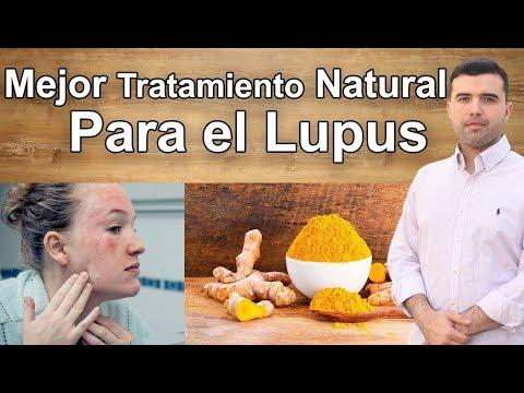 Mejores Tratamientos Naturales Para el Lupus - Lo que Pocos Conocen