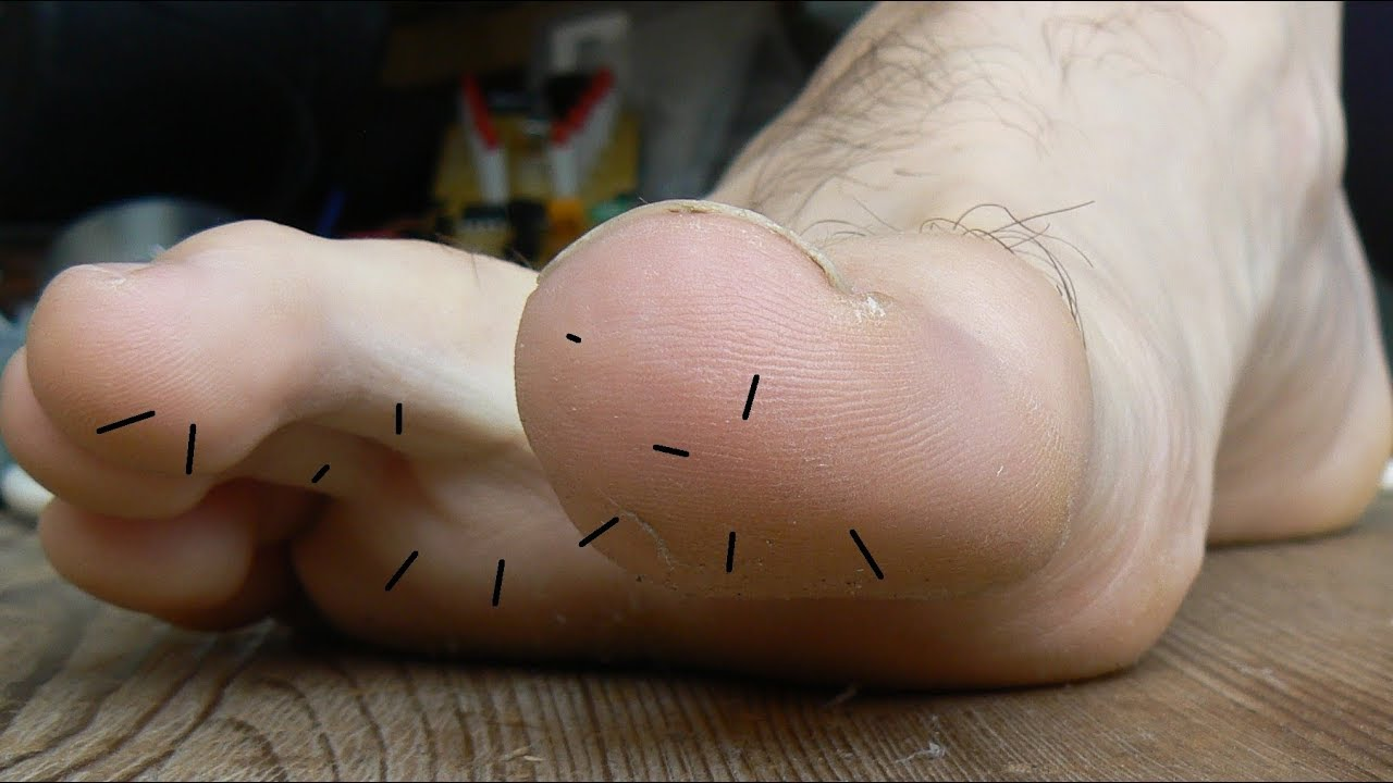 Rondelle D Oignon Sous Le Pied comment retirer des épines d'oursin dans le pied