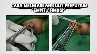 Fimosis seperti apa sih yang harus disunat? Check it out! Follow instagram gue @abhree For your priv.