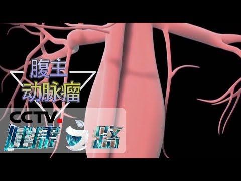 《健康之路》 20190614 血管病了真要命(二)| CCTV科教