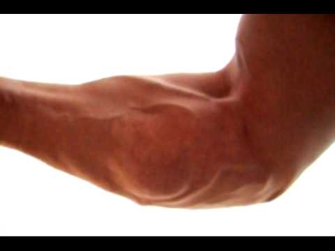 how to get rid of bulging veins on arms