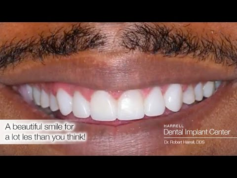 How much do dental implants cost? - YouTube
