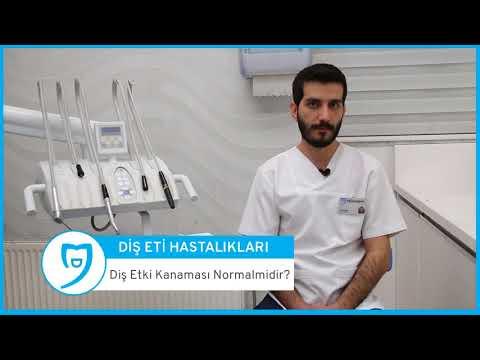 https://www.dentavizyon.com.tr/video/dis-eti-hastaliklari-ve-tedavileri/