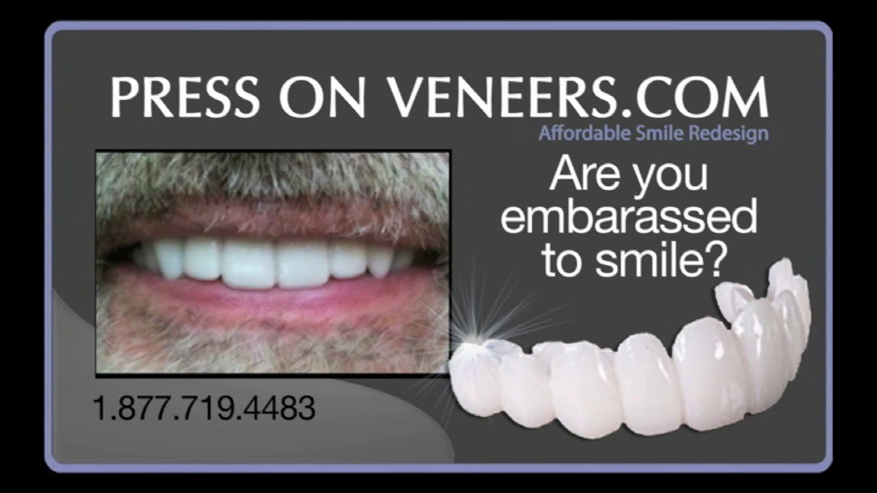 a snap on smile payments alternative press on veneers as