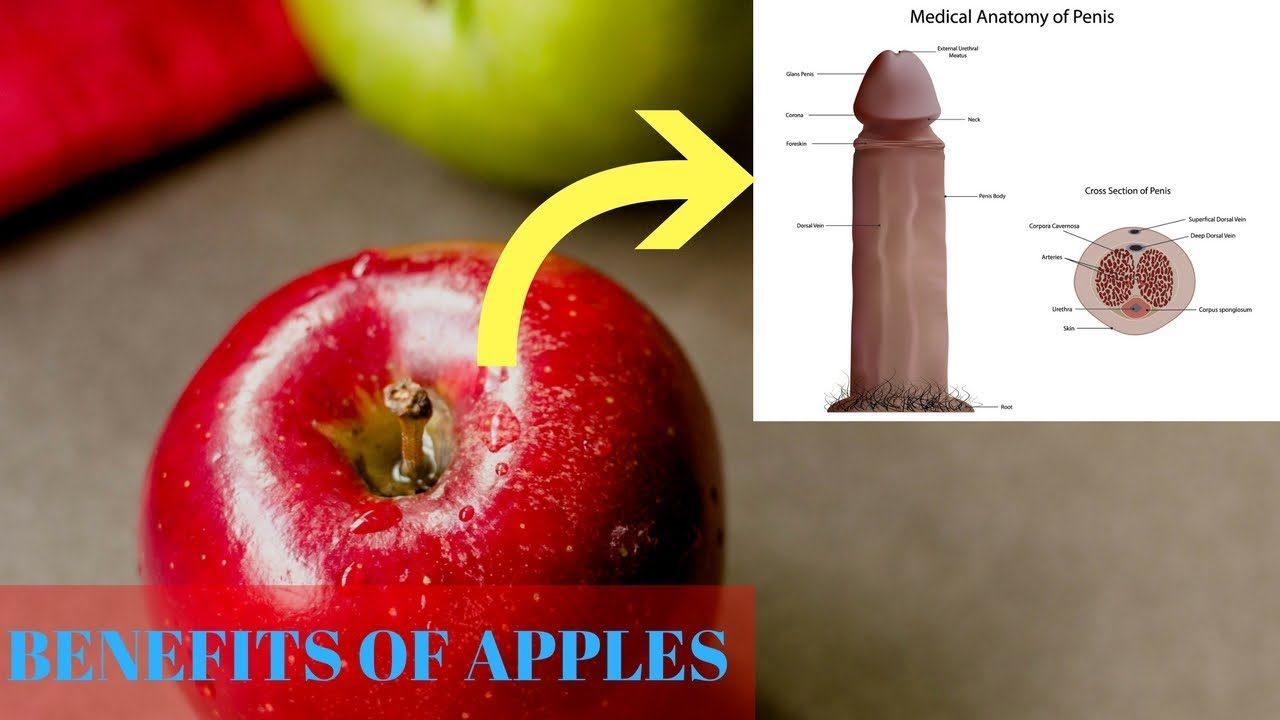 🤷🏼 ♂ #13 Surprising Health Benefits of Apples   Food bank ...