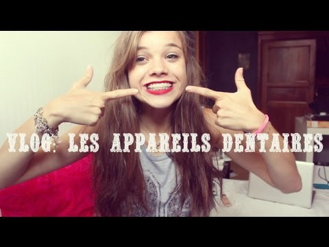 Vlog les appareils dentaires youtube for Bagues dentaires interieur