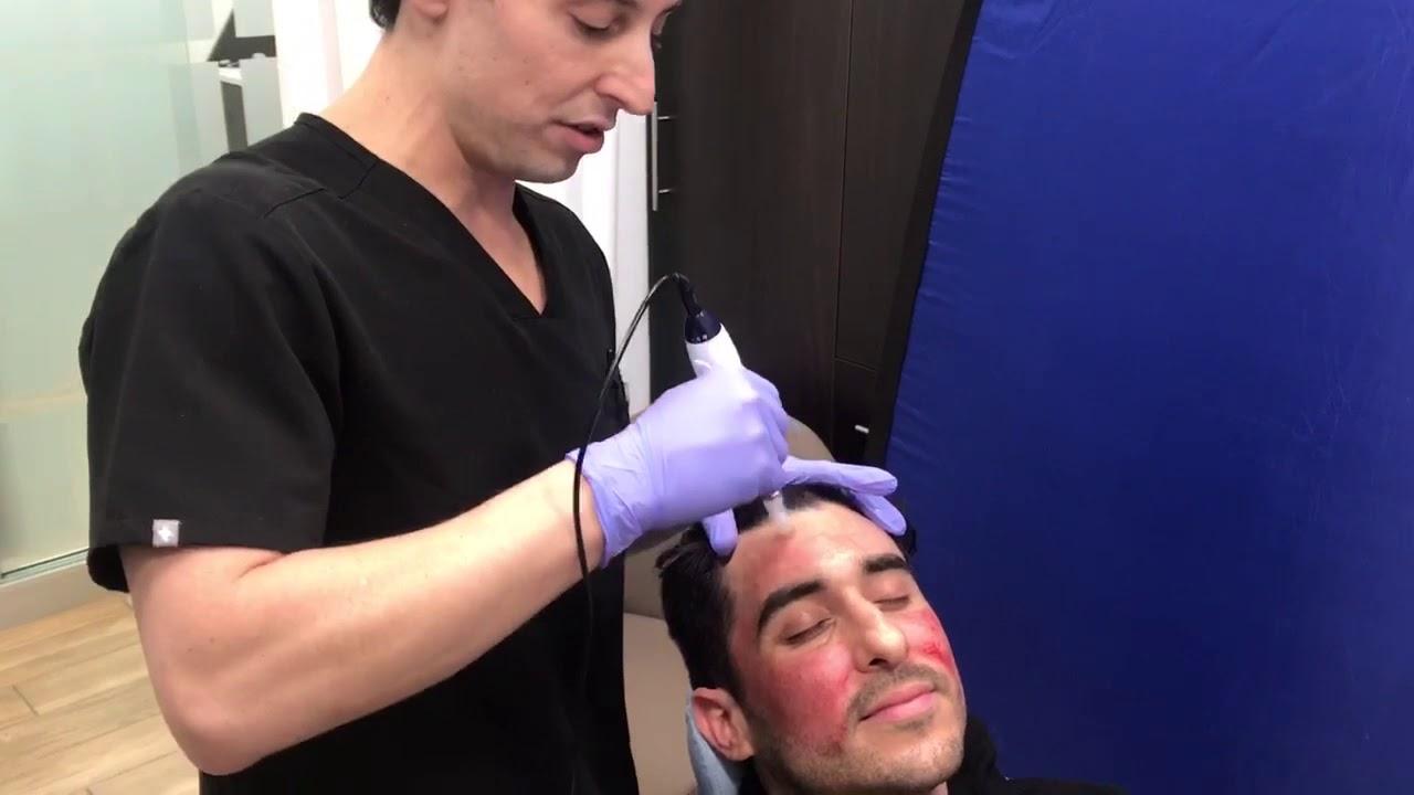 Microneedling Skin Rejuvination in NYC | Neinstein Plastic