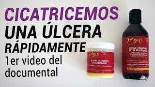 Tratamiento úlcera ayurvédico venosa