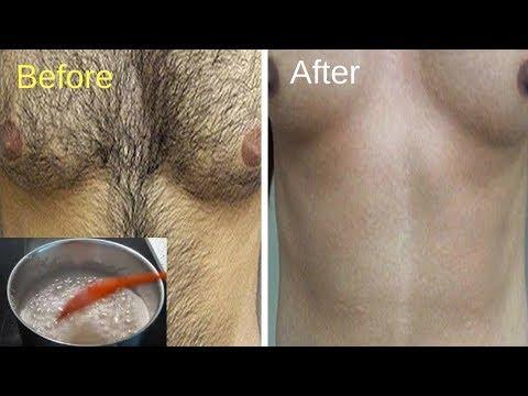 शरीर के Unwanted Hairs को हमेशा के लिए दूर करने का आसान घेरलू तरीका। Unwanted hair removal at home