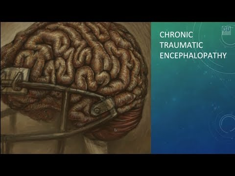TBI School Of Hard Knocks: Most Up-to-Date Info On TBI, CTE, And The NFL Concussion Crisis