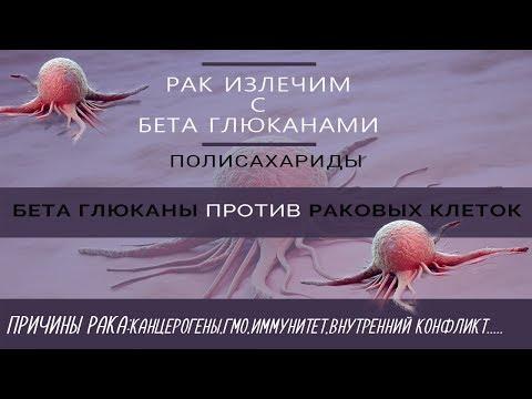 Рак шейки матки – симптомы, стадии, прививка от рака шейки