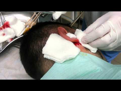 Лимфоузлы за ухом сигнальные кнопки организма