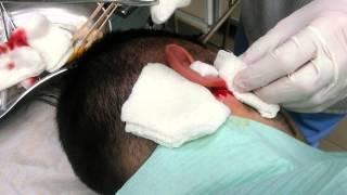 Операция нагноившейся атеромы в области уха(Нагноившуюся атерому вскрывают из небольшого разреза и эвакуируют гной. После стихания воспалительных..., 2014-10-29T18:47:23.000Z)