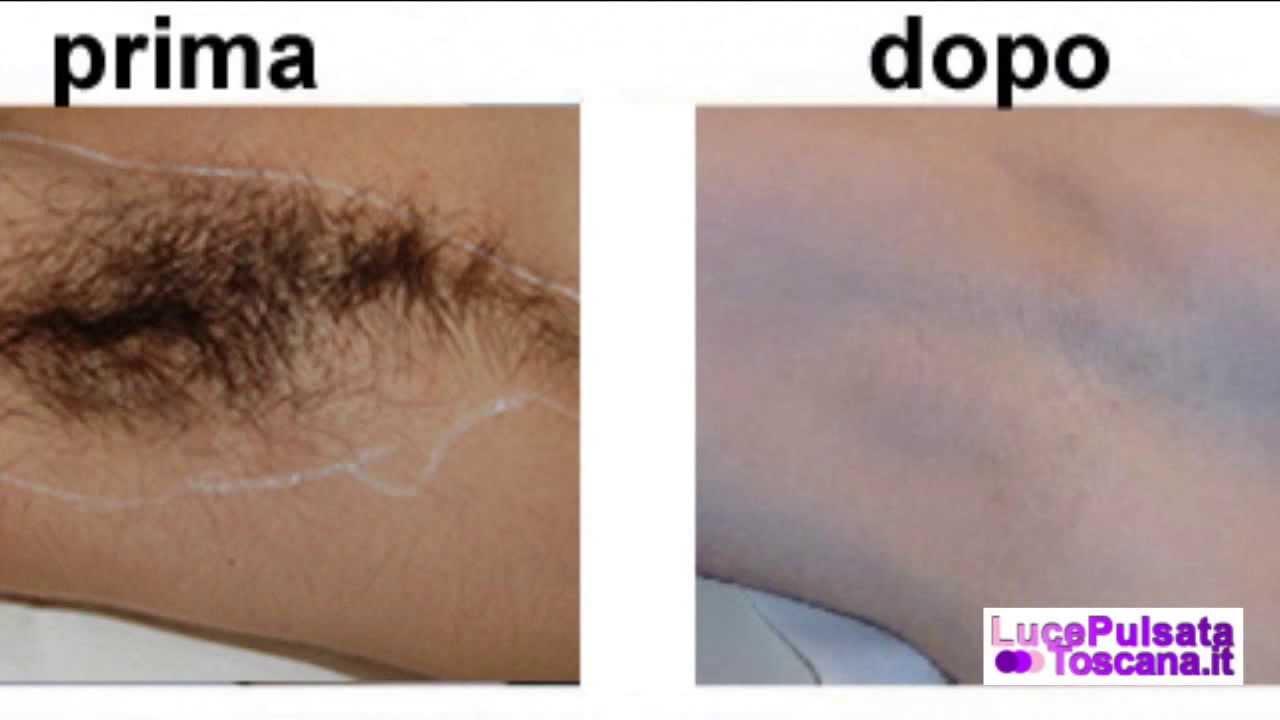 molti peli incarniti dopo depilazione