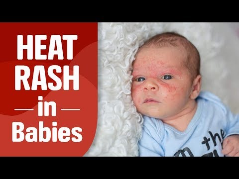 Heat Rash in Infants – Reasons, Signs & Home Remedies