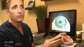 Advanced FORTIFIED LASIK - Opitmizing Your Longterm Vision Benefits