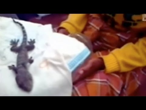 Woman Gives Birth To A Lizard - Shocking...