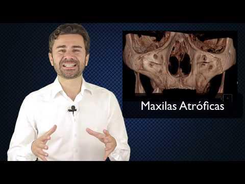 Efeito Manada na Implantodontia | Enxerto Ósseo | Técnicas Avançadas SEM ENXERTO |