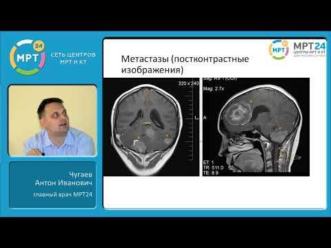 Как выглядит злокачественная опухоль на мрт