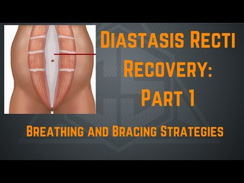 Diastasis Recti Recovery Part 1: Breathing and Bracing Strategies