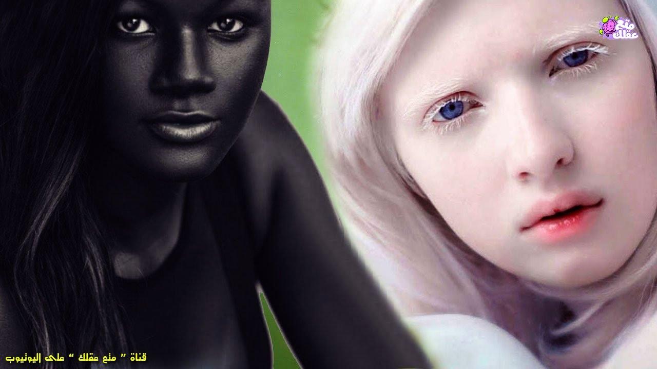 5 فتيات يمتلكن أغرب لون بشرة فى العالم Youtube
