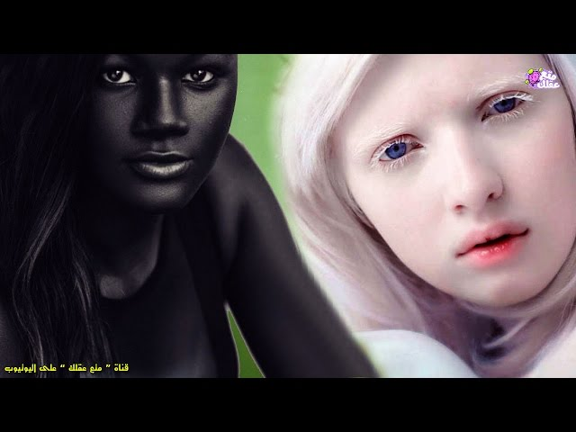 5 فتيات يمتلكن أغرب لون بشرة فى العالم !