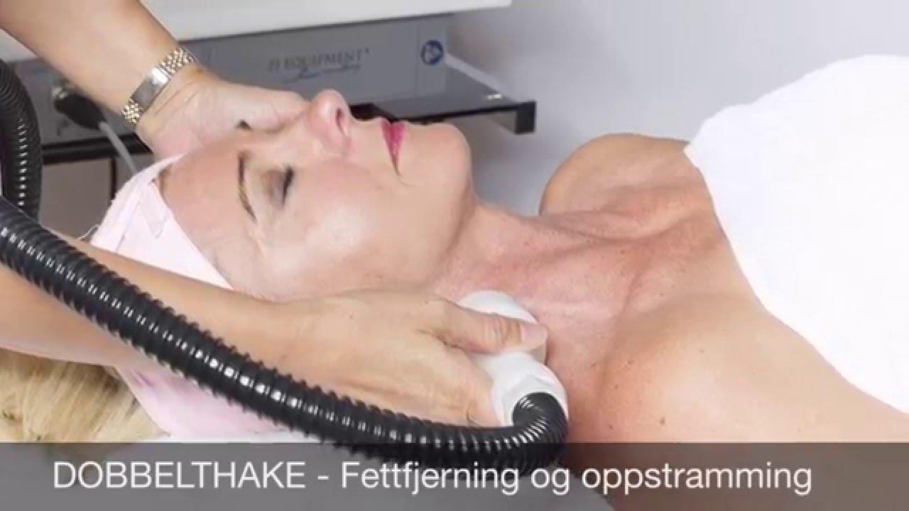 Cryo 21 - Cryoterapi