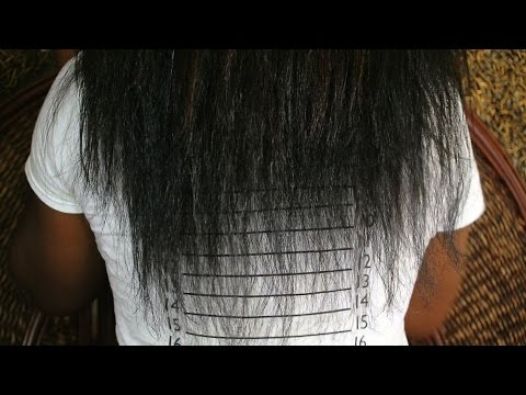 Anemia (Iron deficiency) - Excessive shedding - My DEVASTATING hair LOSS (part 1)